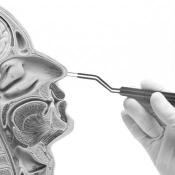 Біполярний електрод для каутеризації носової раковини Ellman
