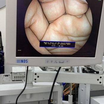 Эндоскопическая стойка FUJINON 4400 HD